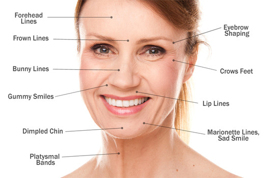 Face & neck areas that can be treated with Botox