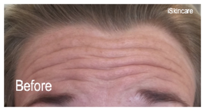 Forehead before Botox treatment in Poole