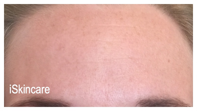 Forehead after Botox treatment in Poole