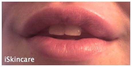 after Lip Fillers by iSkinCare in Poole